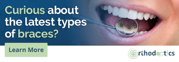 Information on Types of Braces