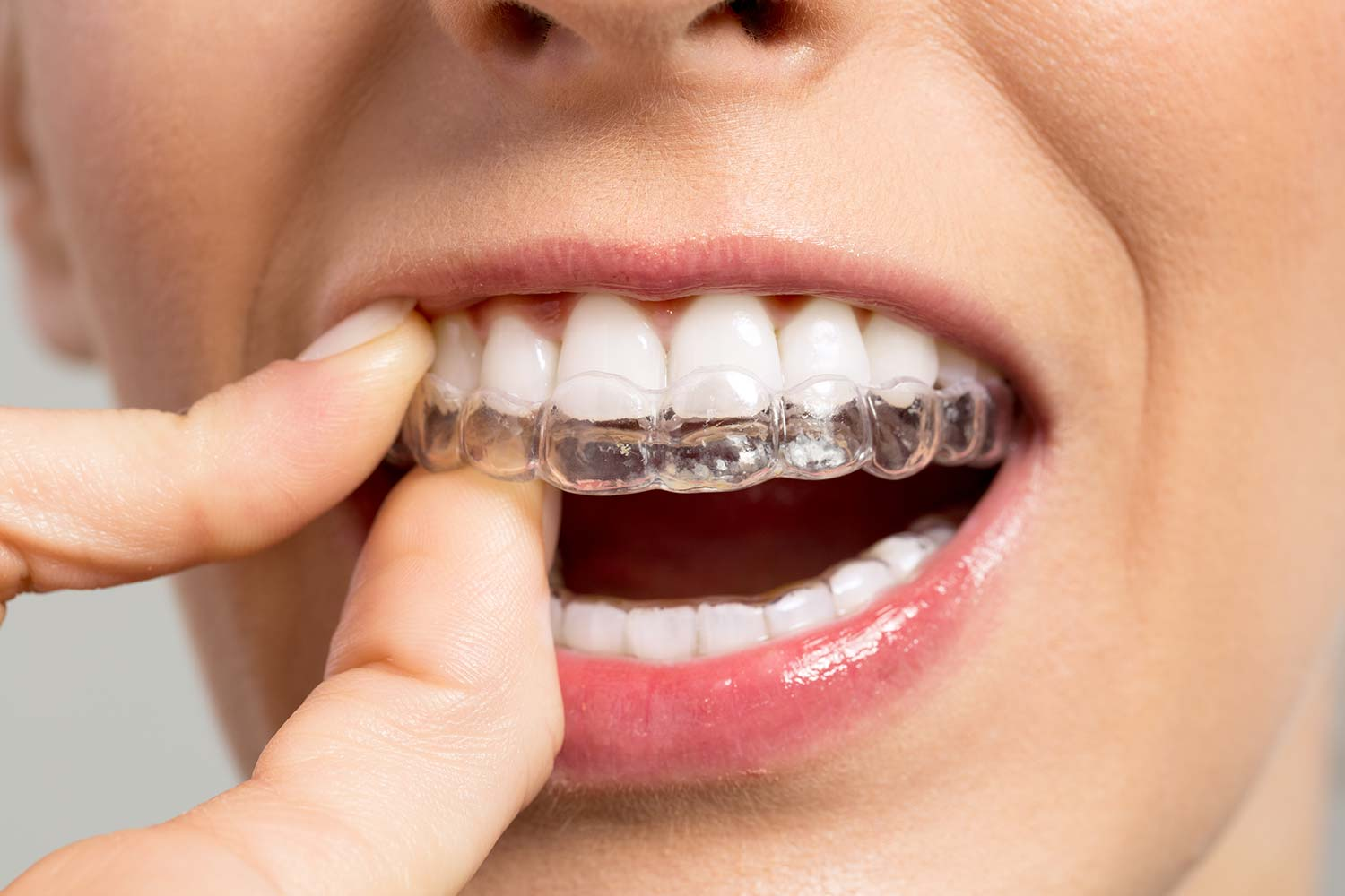 Woman putting orthodontic clear braces on her teeth