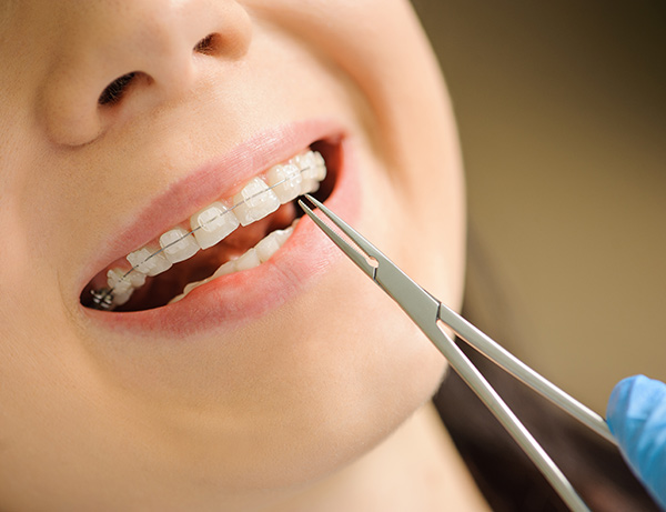 Woman with ceramic braces at orthodontist