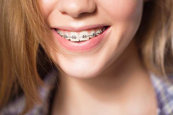 A teen girl who avoided white spots from braces by brushing well