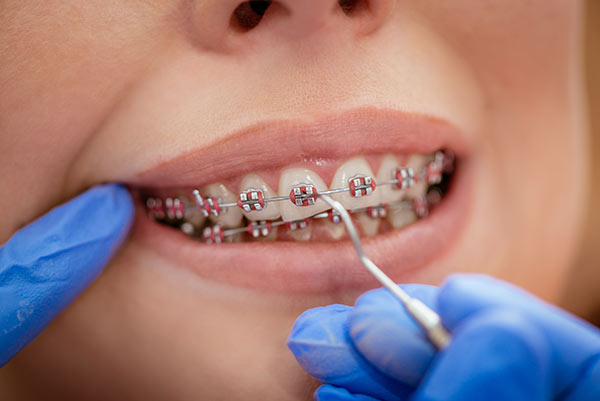 A person with braces getting a braces check up at their orthodontist.