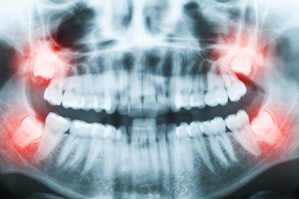 X-ray of a mouth highlighting the wisdom teeth