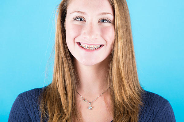 Smiling woman with traditional metal braces.