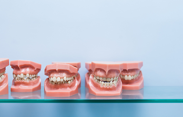 A row of model teeth showing off different types of malocclusion
